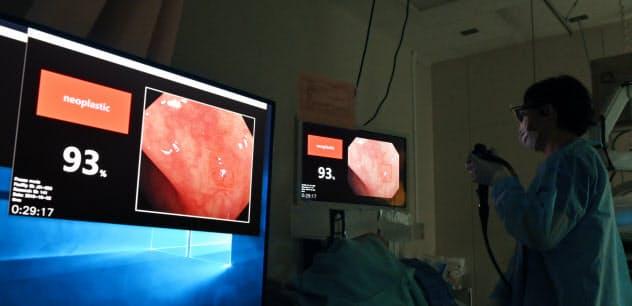 大腸に挿入した内視鏡の動画像からAIが異常を見つける臨床研究が行われている(東京都港区の東京慈恵会医科大学付属病院)