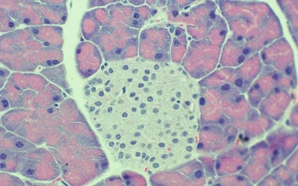 インスリンをつくる細胞などが集まってできた膵臓の組織=植木氏提供