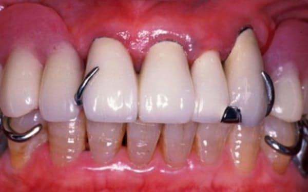 入れ歯などの義歯を使ってかみ合わせをよくする=東京医科歯科大・水口俊介教授提供
