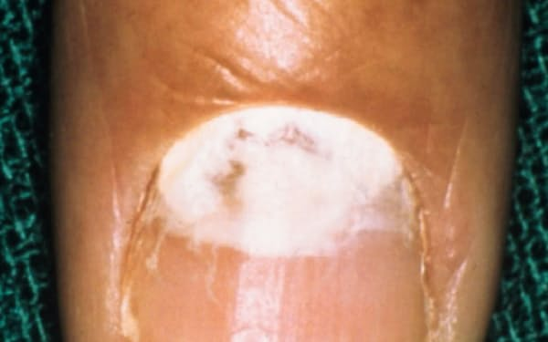 爪白癬の一例。爪の根元が白濁している(日本医科大学付属病院真菌外来)