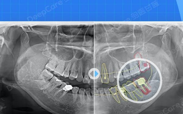レントゲンやCT画像を分析し、病状進行の計算や治療方針の設計ができる=羽医甘藍提供