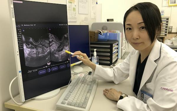 聖マリアンナ医科大学の洞下講師はPCOSの超音波画像を見せて患者に説明する