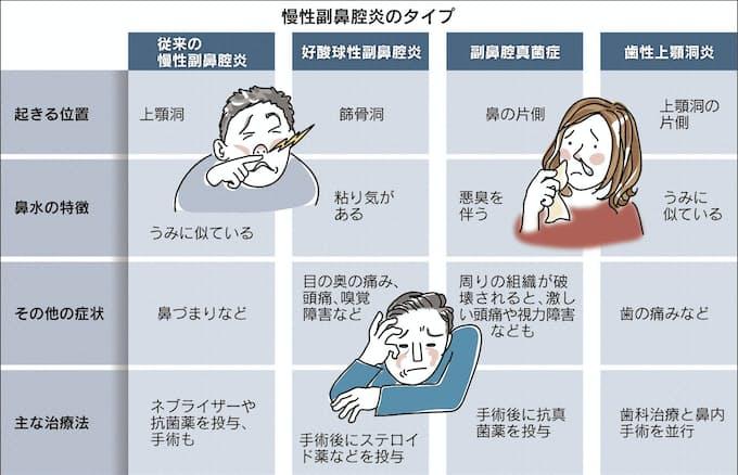副 鼻腔 炎 慢性