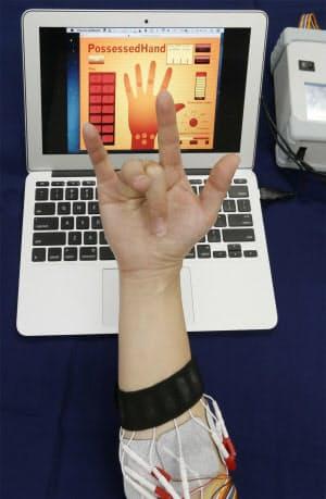 人の指をコンピューター制御する「Possessed Hand」。電気刺激を与えるプラスマイナスの電極の数は14組。電極の位置と刺激の大きさのパターンをパソコンソフトに学習させ、他人の指を制御できるようになる