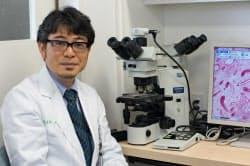 「毛根ゼロの患者を救う」目標を持つ慶応大の大山准教授