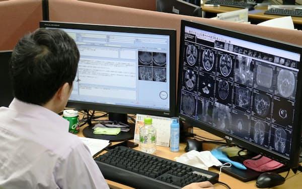 病院から送られてきた画像を片方のモニターで観察し、リポートをまとめていく(広島市のエムネス本社)