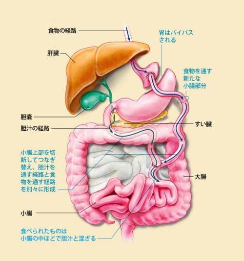 食物が消化液と混ざる腸の上部を短くする手術(図は「ルーワイ胃バイパス術」の例)によって、吸収されるカロリーが減るだけでなく、栄養素の通過によって腸の細胞が受ける刺激が制限される。手術が血糖の制御をどのようにして改善するのか、そのメカニズムの特定が始まっている。