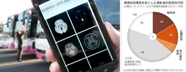 高速バスのWILLER EXPRESSは受診した脳MRIの画像をスマホで確認できる健康管理を始めた(堺市)。右は健康起因事故の疾病別内訳