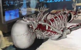 「5G」は拡張現実を使った手術支援を可能にする(CESのユーチューブより)