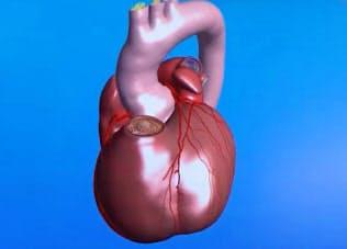 心筋の動き、血流などをスーパーコンピューターでリアルに再現した