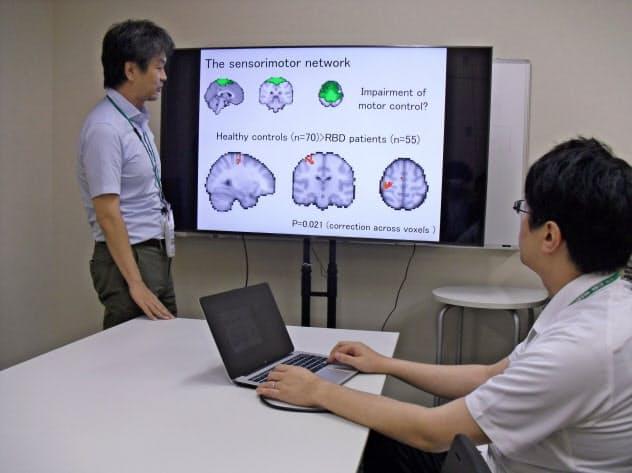 国立精神・神経医療研究センターは磁気共鳴画像装置で撮影した脳の画像から、レム睡眠行動異常症の患者を見分ける技術を開発した(同センター提供)