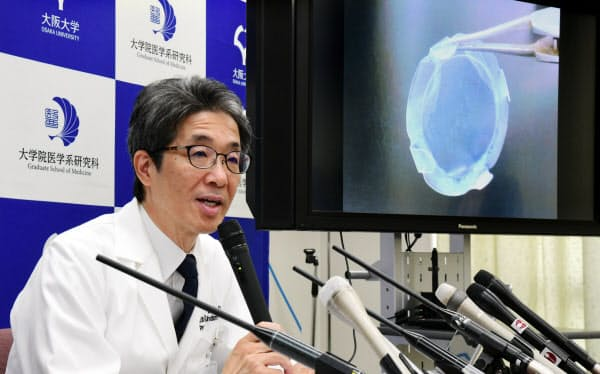 iPS細胞から作った角膜組織の移植実施について記者会見する大阪大学の西田幸二教授(29日、大阪府吹田市)
