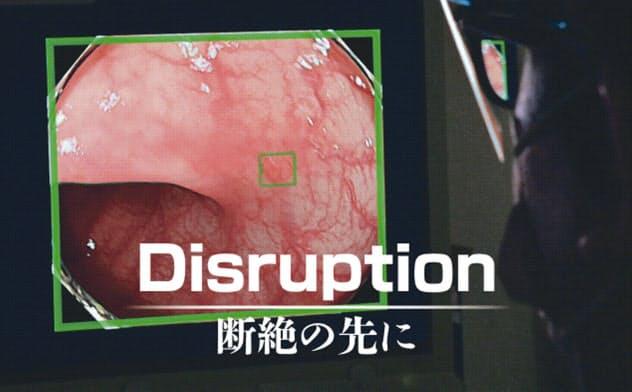ドクターAIは失敗しない 内視鏡検査の精度高く
