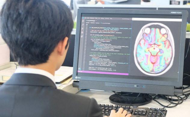 脳の画像からAIが発症リスクをはじき出す