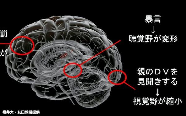 虐待(子育て困難)が脳に及ぼす影響(福井大・友田教授提供)