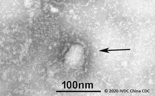 中国・武漢市で発生した肺炎の原因とされる新型のコロナウイルスの電子顕微鏡写真=中国疾病予防コントロールセンター、GISAID提供・共同