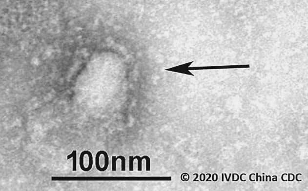 中国武漢市で発生した肺炎の原因とされる新型のコロナウイルスの電子顕微鏡写真(中国疾病予防コントロールセンター、GISAID提供)=共同
