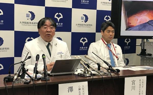 iPS細胞を使った心臓病再生医療の臨床試験の一例目実施について説明する阪大の澤芳樹教授(左)ら(1月27日、大阪府吹田市)