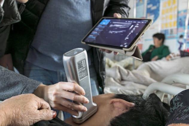 AIによる超音波診断システムは20種類以上の疾患に対応している(上海深至辛信域科技提供)
