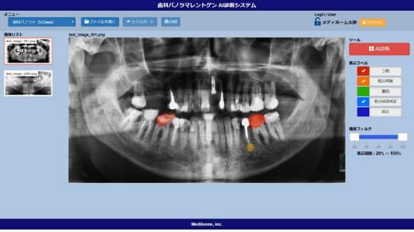 メディホームの診断AIはパノラマエックス線写真を画像解析して虫歯などを見つける
