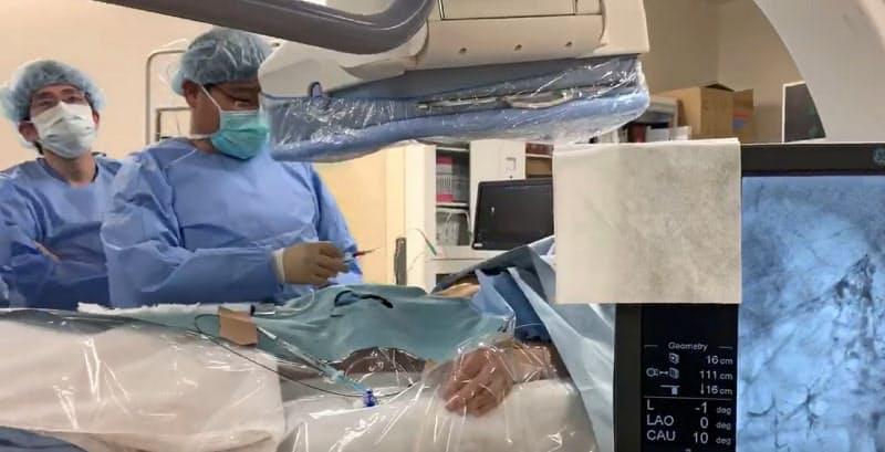 帝京大学医学部附属病院の山本真由医師はリンパ漏患者にカテーテル治療を行っている=同病院提供