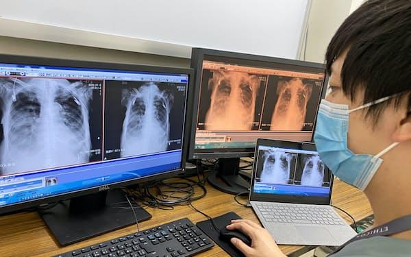 T-ICUはコロナ患者を含め専門医が24時間相談にのる(神戸市の神戸徳洲会病院)