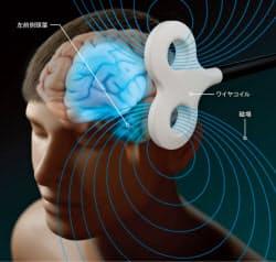 外部から脳を電気や磁気によって刺激することによってサヴァンのような優れた能力を引き出す試みも注目されている。画像は経頭蓋磁気刺激のイメージ=AXS Biomedical Animation Studio