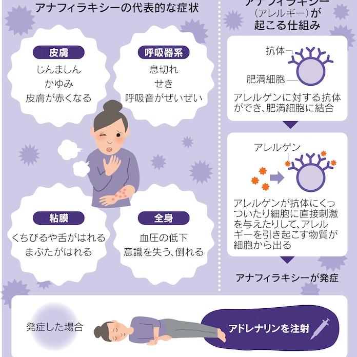 コロナ 唇 腫れる 突然腫れた下唇 気づかず苦しんだ、成人後のアレルギー:朝日新聞デジタル