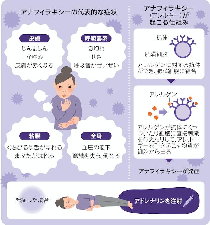アナフィラキシー ショック 症状