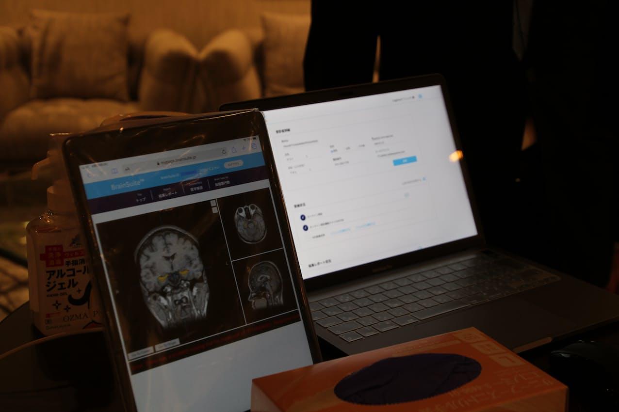 フィリップスが提供する「ブレーンスイート」はMRI画像などから脳の健康度を判定する