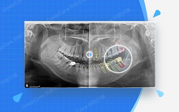 レントゲンやCT画像を分析し、病状進行のシュミレーションや治療方針の設計ができる=羽医甘藍提供