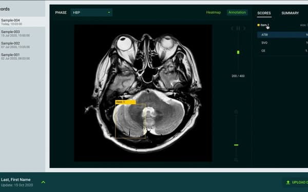 ハカルスは医療分野での事業展開に注力する(画像は開発中の脳卒中診断支援AI)