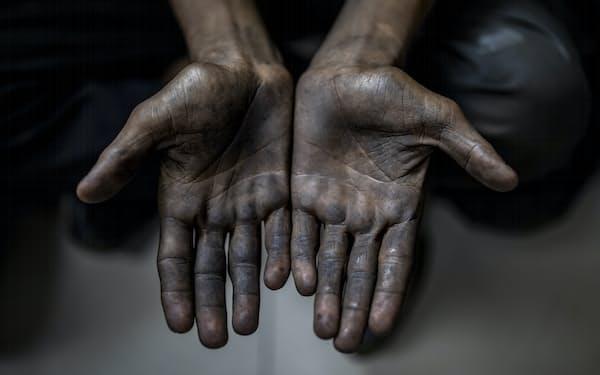 インド・ニューデリーの自動車関連工場で不当に働かされていた17歳の児童労働者の手。今年8月、人権団体の告発を受け警察が捜索し児童を救出した=AP