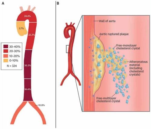 破綻した大動脈プラークの部位別発生頻度とタイプ (出典:J Am Coll Cardiol. 2018 :71:2893-902.)