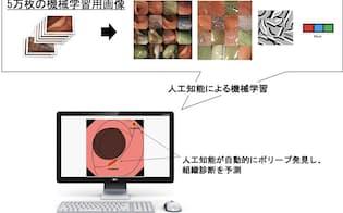 約5万枚の大腸ポリープ画像を学習データとしてポリープを検出し、組織診断の確信度を予測(出所:東京慈恵会医科大学、エルピクセル)