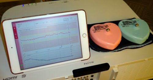 IoT胎児モニター「分娩監視装置iCTG」