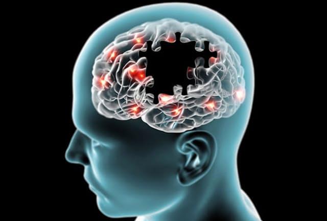 認知症と関係する脳の萎縮は、太っている人ほど進んでいる。画像はイメージ=(C)vampy1-123RF