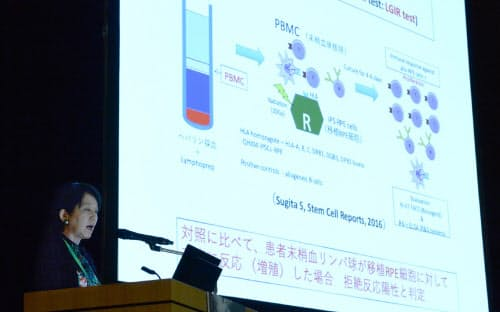 iPS細胞を用いた臨床研究結果について発表する理化学研究所の高橋政代氏(18日午前、東京都千代田区)