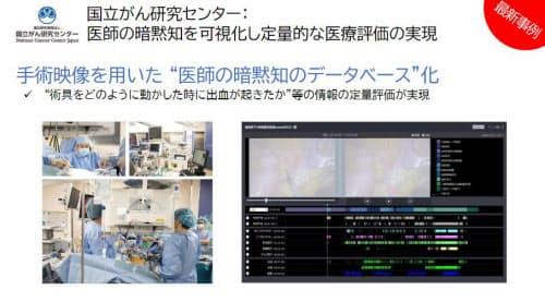 手術映像のデータベースの構築にAzureを活用(出所:日本マイクロソフト)