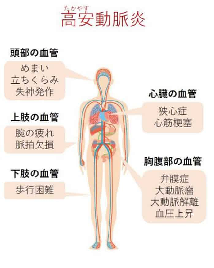 東北大、高安動脈炎の病因となるタンパク質を同定: 日本経済新聞