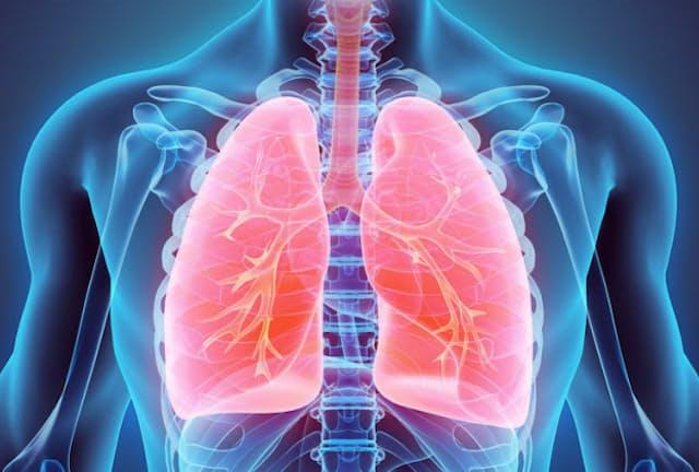 現在、日本人のがん死亡数のトップとなっているのは「肺がん」です。(c)yodiyim-123RF