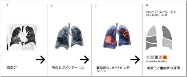 肺炎の画像解析の流れ(出所:シーメンスヘルスケア)