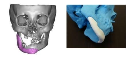 [左]写真1 欠損部の3Dモデル [右]写真2 骨の前駆体の粉末に硬化液を吹きつけて成型
