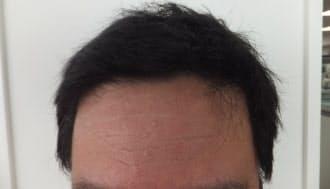 いくつになっても、髪を気にする人は多い
