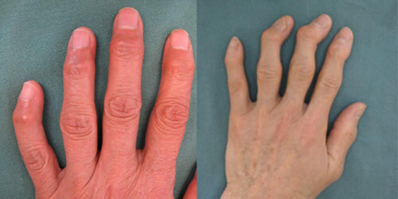 指 の 関節 が 腫れる 病気