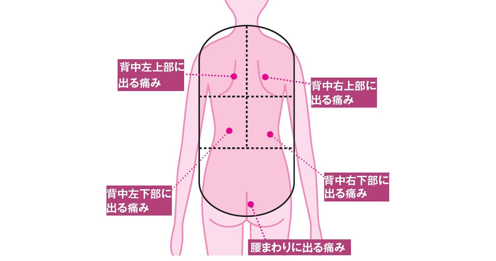 背中 の 痛み 原因