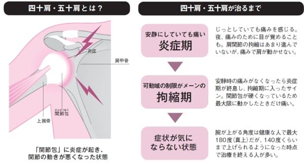 [左]肩関節は、肩甲骨の浅いくぼみに上腕骨がはまる形になっている。四十肩・五十肩では、肩関節を包む袋状の組織である関節包に炎症が起き、肥厚・線維化して硬くなっている(イラスト:三弓素青)