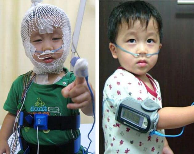 子供 無 呼吸 症候群