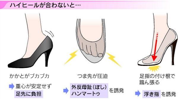 痛い 足 の 小指 指