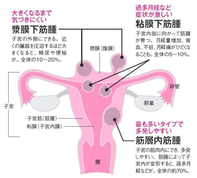 女性に多い病気・初期症状 [婦人病・女性の病気] …